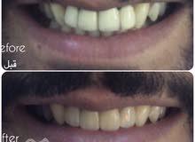طبيب أسنان خبرة 5 سنوات