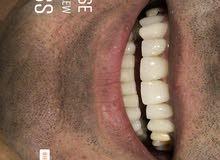 مطلوب مندوب لمختبر اسنان لمدينة عمان