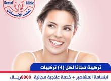 اقوى عروض الاسنان  لدى مجمع اضواء العلاج 0