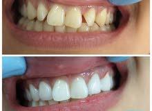 مركز مسقط للأسنان التخصصي