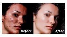Face and Body Retouching