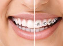 مطلوب طبيبة اسنان مقيم للعمل بنجران