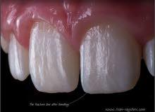طبيب أسنان خبرة 5 سنوات ابحث عن وظيفة شاغرة