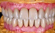 معمل اسنان لعمل جميع التركيبات الثابته بافضل سعر وافضل خامات طربوش بو