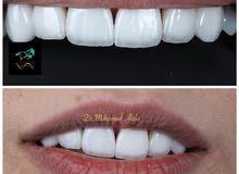 مطلوب ممرضة عمانية للعمل في مركز طبي راقي متخصص في تجميل و زراعة و تقويم الأسنان