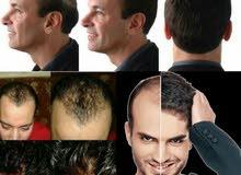 تركيب الشعر الطبيعى و الشبكيه وباروكات المشاهير
