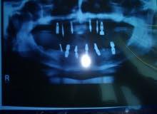 تركيبات أسنان ثابته أو متحركه كاش أو دفعه واقساط ابتسامه هوليود