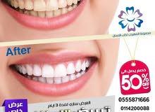 تبيض وتنظيف وتلميع الاسنان بتقنيه الفلاش بسعر مفاجأة