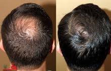 منتج عناية لإنبات الشعر والتخلص من الصلع المبكر والفراغات