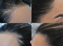 منتج الافغاني الاصلي فعال للتساقط الشعر وانبات فراغات مضمون مجرب