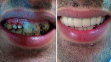 أسنان الزركون جودة عالية وبأسعار مناسبة