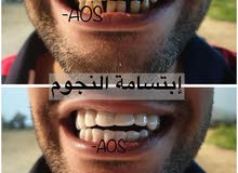 فينير اسنان