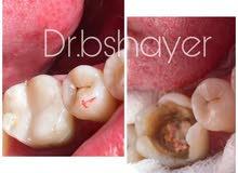 طبيبة اسنان سورية الجنسية