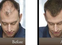 معالج الصلع و الفراغات في الشعر