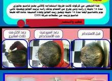 كورس لعلاج تساقط الشعر