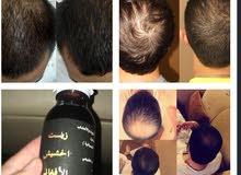 منتج الافغاني الاصلي لجميع مشاكل الشعر مضمون للتساقط وانبات وطالة الشعر اصلي