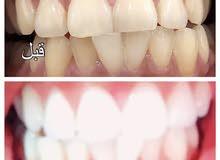 منتج مبيض اسنان قوي  امريكي بسعر رمزي