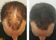 استعادة شعرك الكثيف