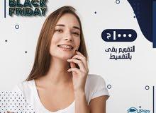 تقويم أسنان بالتقسيط لأول مرة فمصر