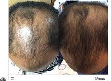 لا داعي لزراعة الشعر المؤلمة والباهظة اليك الحل آمن و موفر