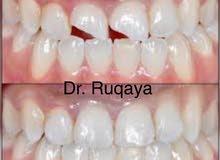 تخفيضات على جميع الحالات العلاجيه والتجميليه لطب الاسنان