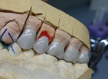 فني أسنان من الأردن أبحث عن معمل أسنان بالكويت