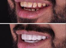 ابتسامة الفينير ب أقل الاسعر لاتفوتكم