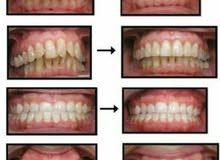 تقويم الأسنان طبي وزينة فرصة