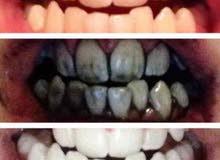 منتج تنظيف وتلميع الاسنان من الكربون المنشط