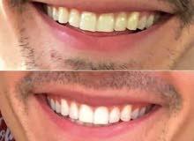 بودرة تبييض الأسنان الأقوى في الأردن
