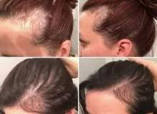 علاج تساقط الشعر بصورة نهائية