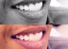 ابتسامة هوليوود و زراعة اسنان باسعار خيالية