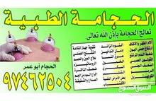 حجامة  أبو عمر