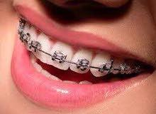 الابتسامه البارقه