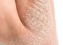 طينه البحر الميت العلاجيه طبيعية لعلاج الصدفيه و مشاكل الجلد كافه