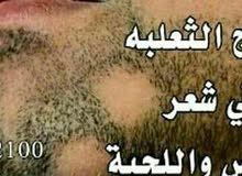 منتجات اصليه ومضمونه ومصرحه من وزارة الصحه