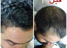 لكل من يعاني مشاكل الشعر  تساقط تقصف قشرة