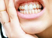 غلاف للأسنان هيب هوب دهبي