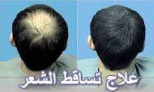 الحل النهائي لجميع مشاكل الشعر