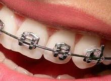 للبيع تقويم الأسنان يتركب بالبيت ب 250 فقط