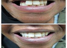 تعويض الاسنان المفقودة  تركيب طقم الاسنان