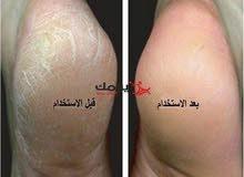 جهاز علاج جلد المتشقق للقدم