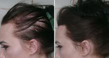 ودع الصلع الوراثي و تساقط الشعر و انبت شعرك من جديد