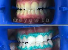 تبييض الاسنان بعجمان بجلسه واحده فقط 500 درهم مع تنظيف مجاني