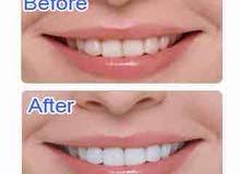 الان جهاز تبيض الاسنان white lighte للعروسين والمدخنين