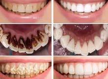 مبيض اسنان ومزيل الاصفرار والسموم  يجنن للرجال والنساء