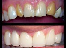 العيادة النموذجية لزراعة الاسنان الالمانية