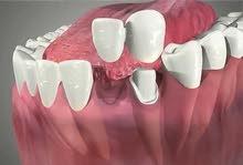 مطلوب فنية اسنان للتدريب والعمل