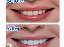 جهاز تبييض الاسنان whiiteLight