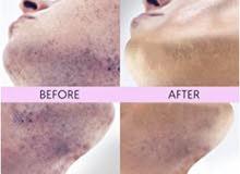 - وسادات معالجة الشعر الناشئ للرجال والنساء